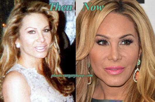 AdrienneMaloofBotox Adrienne Maloof Before After Plastic Surgery Botox Pictures