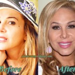 Adrienne Maloof Before After Plastic Surgery Botox Pictures