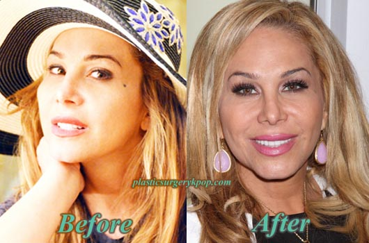 AdrienneMaloofPlasticSurgery Adrienne Maloof Before After Plastic Surgery Botox Pictures