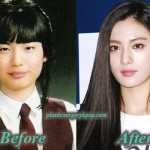 After School Nana Plastic Surgery Before and After Picture