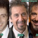 Al Pacino Plastic Surgery Before and After Pictures