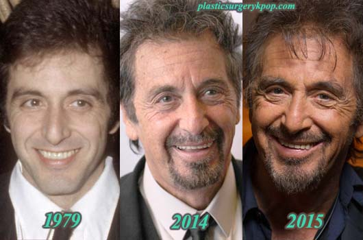 AlPacinoPlasticSurgery Al Pacino Plastic Surgery Before and After Pictures