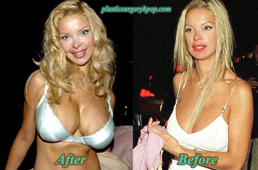 AliciaDouvallBreastImplants Alicia Douvall Plastic Surgery Before and After Pictures