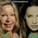 Alicia Douvall Plastic Surgery Before and After Pictures