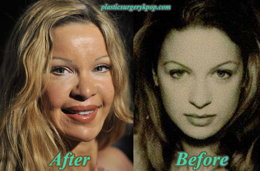 AliciaDouvallPlasticSurgery Alicia Douvall Plastic Surgery Before and After Pictures