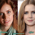 Amy Adams Nose Job Before and After Picture