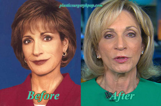 AndreaMitchellFacelift Andrea Mitchell Facelift Plastic Surgery Before and After Pictures
