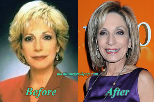 AndreaMitchellPlasticSurgery Andrea Mitchell Facelift Plastic Surgery Before and After Pictures
