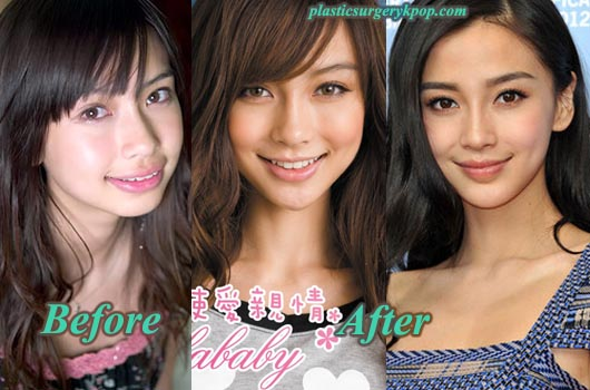 AngelababyPlasticSurgery Angelababy Plastic Surgery Before and After pictures