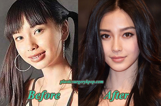 AngelababyPlasticSurgeryBeforeAfter Angelababy Plastic Surgery Before and After pictures