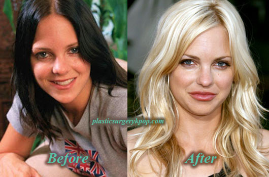 AnnaFarisPlasticSurgery Anna Faris Plastic Surgery Boob Job, Nose Job Before After Picture
