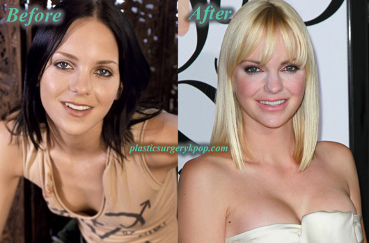 AnnaFarisPlasticSurgeryBoobJob Anna Faris Plastic Surgery Boob Job, Nose Job Before After Picture