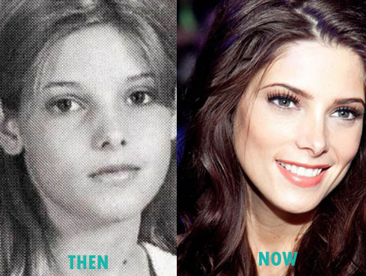 Ashley Greene Plastic Surgery Nose Job Before and After Ashley Greene Plastic Surgery Nose Job Before and After