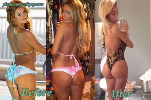 AubreyODayButtImplants Aubrey O Day Plastic Surgery Breast, Butt Implants Before After Pics