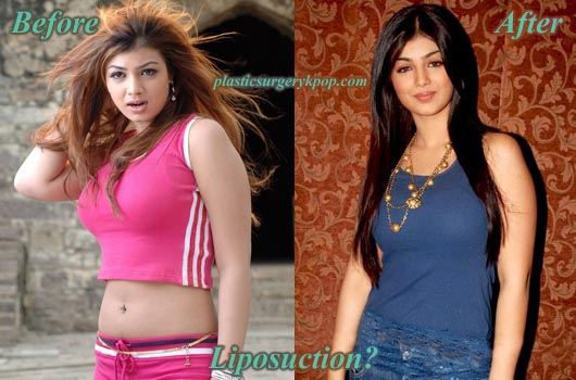 AyeshaTakiaPlasticSurgery Ayesha Takia Plastic Surgery Before and After Picture