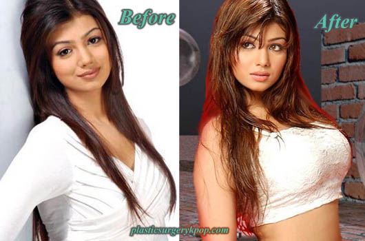 AyeshaTakiaPlasticSurgeryBreastImplants Ayesha Takia Plastic Surgery Before and After Picture