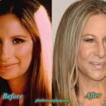 Barbra Streisand Plastic Surgery Before and After Picture