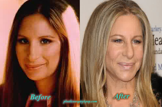 BarbraStreisandPlasticSurgery Barbra Streisand Plastic Surgery Before and After Picture