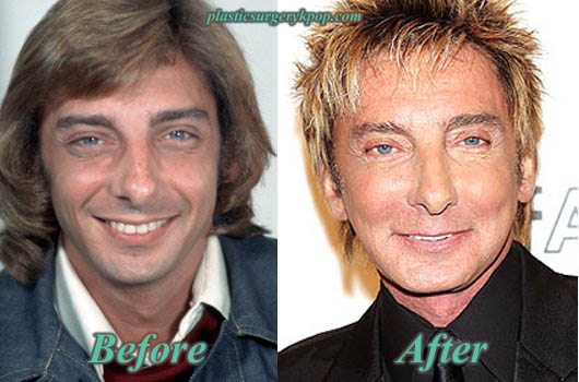 BarryManilowFaceliftBeforeAfterPhoto Barry Manilow Plastic Surgery Before and After Pictures