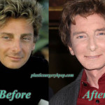 BarryManilowPlasticSurgery 150x150 Susan Lucci Plastic Surgery Before and After Pictures
