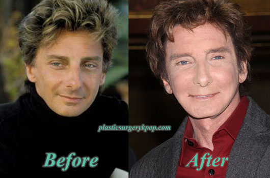 BarryManilowPlasticSurgery Barry Manilow Plastic Surgery Before and After Pictures
