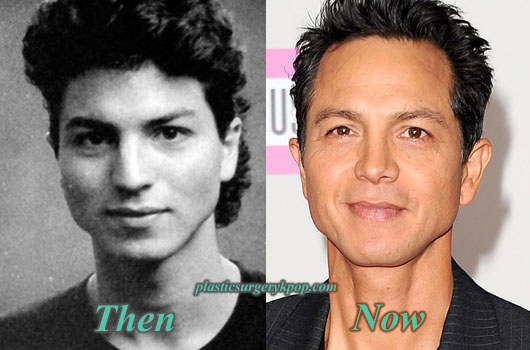 BenjaminBrattNoseJob Benjamin Bratt Nose Job Plastic Surgery Before and After Pictures