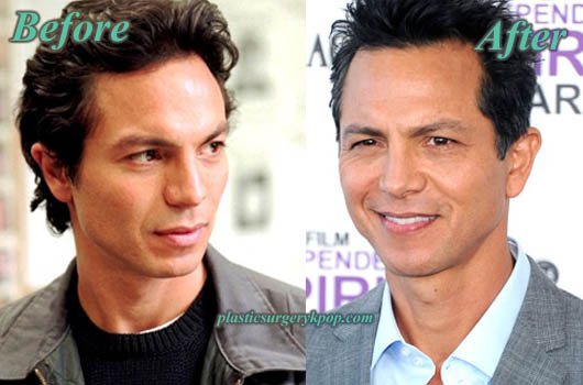BenjaminBrattPlasticSurgery Benjamin Bratt Nose Job Plastic Surgery Before and After Pictures