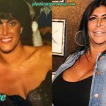 Big Ang Plastic Surgery Before & After Pictures