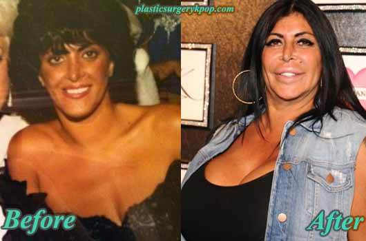 BigAngPlasticSurgery Big Ang Plastic Surgery Before & After Pictures