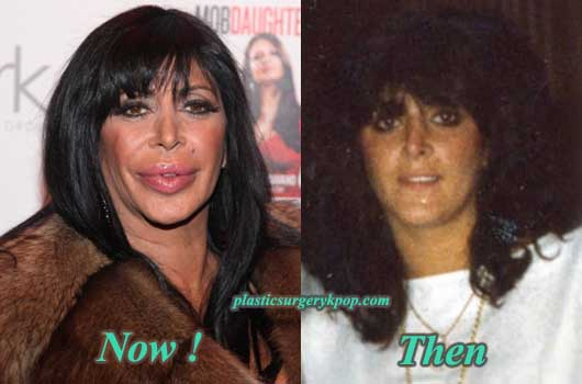BigAngPlasticSurgeryPicture Big Ang Plastic Surgery Before & After Pictures
