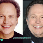 Billy Crystal Plastic Surgery Before After Pictures