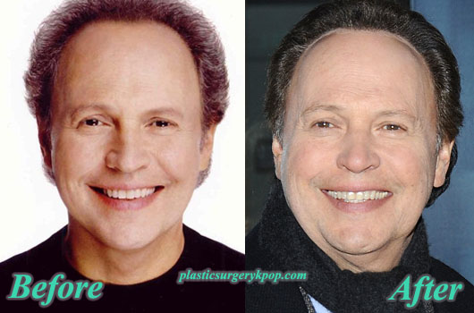 BillyCrystalPlasticSurgery Billy Crystal Plastic Surgery Before After Pictures