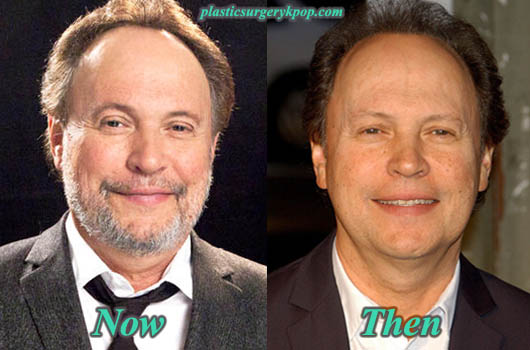 BillyCrystalPlasticSurgeryPicture Billy Crystal Plastic Surgery Before After Pictures