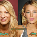 BlakeLivelyPlasticSurgeryNoseJob 150x150 Jennifer Aniston Plastic Surgery Nose Job Before After