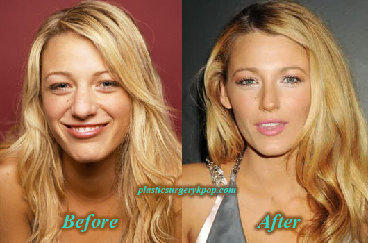 BlakeLivelyPlasticSurgeryNoseJob Blake Lively Plastic Surgery of Nose Job Before After Picture