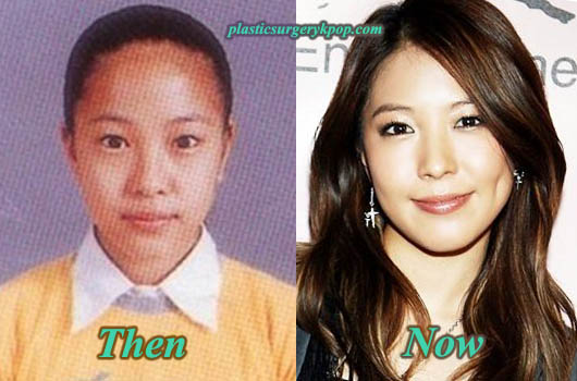 BoaKwonPlasticSurgery Boa Plastic Surgery Before and After Rumor Pictures