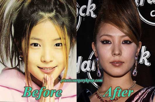 BoaPlasticSurgery Boa Plastic Surgery Before and After Rumor Pictures
