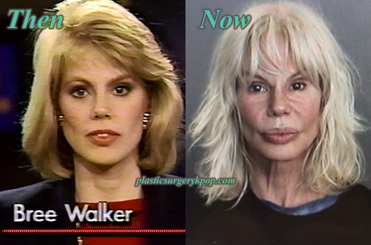BreeWalkerLipsAugmentation Bree Walker Plastic Surgery Before and After Pictures