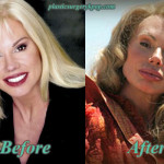 Bree Walker Plastic Surgery Before and After Pictures