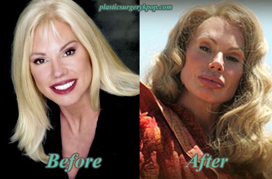 BreeWalkerPlasticSurgery Bree Walker Plastic Surgery Before and After Pictures
