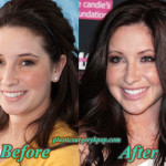 BristolPalinPlasticSurgery1 150x150 Haylie Duff Plastic Surgery Before and After