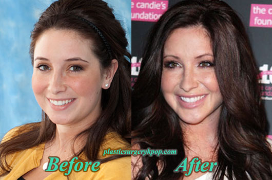 BristolPalinPlasticSurgery1 Bristol Palin Plastic Surgery Before and After Jaw Surgery Pictures