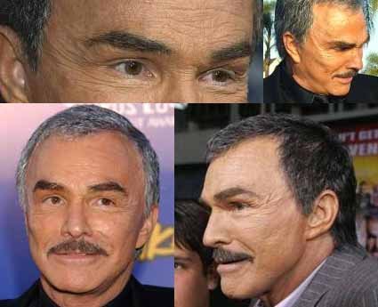 BurtReynoldsPlasticSurgeryFaceliftBeforeAfterPictures Burt Reynolds Plastic Surgery Facelift Before After Pictures