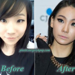 CL 2NE1 Plastic Surgery Nose Job Eyelid Before After Picture