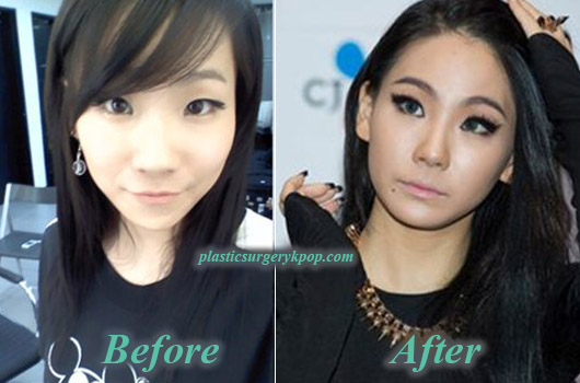 CL2NE1PlasticSurgery CL 2NE1 Plastic Surgery Nose Job Eyelid Before After Picture