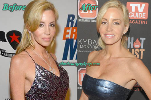 CamilleGrammerBreastImplants Camille Grammer Plastic Surgery Before and After Pictures