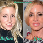 Camille Grammer Plastic Surgery Before and After Pictures