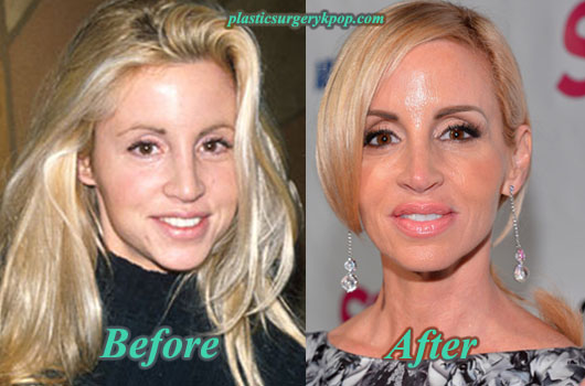CamilleGrammerPlasticSurgery Camille Grammer Plastic Surgery Before and After Pictures