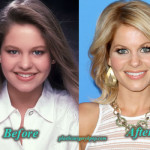 Candace Cameron Plastic Surgery Before and After Picture
