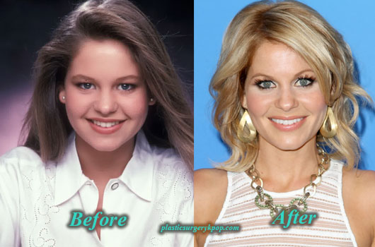 CandaceCameronPlasticSurgery Candace Cameron Plastic Surgery Before and After Picture